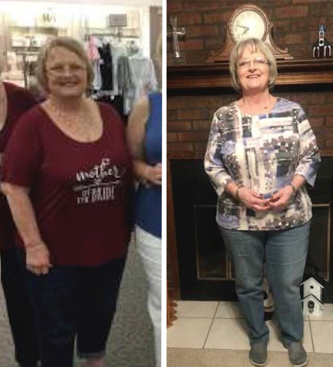 Brenda's weight loss transformation