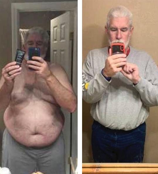 Daniel's weight loss transformation
