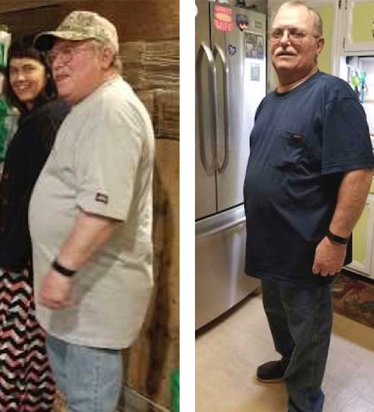 Ernest's weight loss transformation