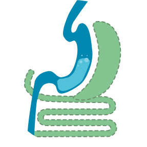 Duodenal switch illustration