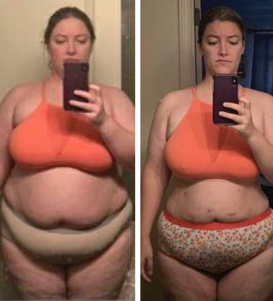 Jessica's weight loss transformation