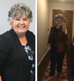 Margaret's weight loss transformation