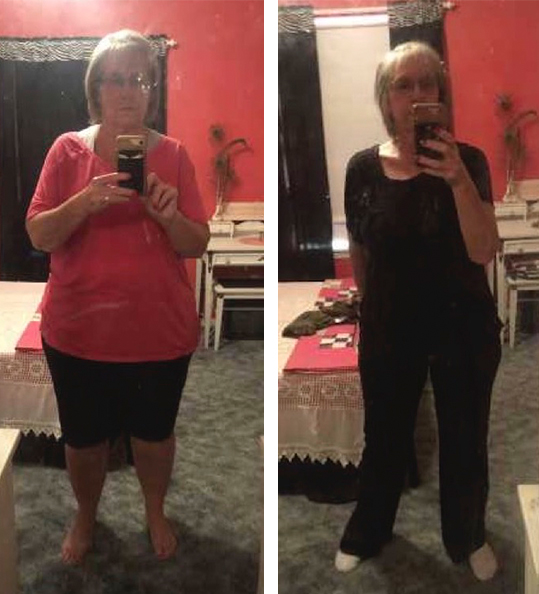 Sandy's weight loss transformation