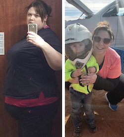 Stacey's weight loss transformation