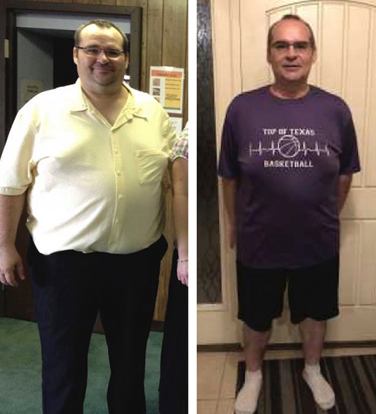 Tim's weight loss transformation