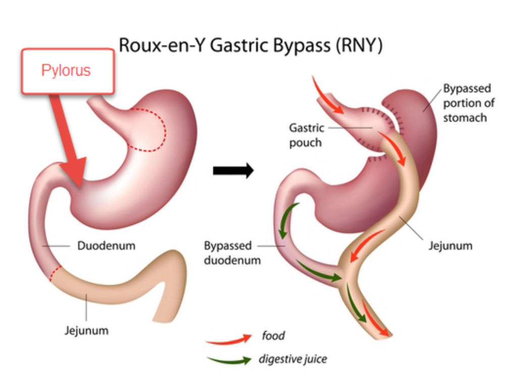 gastric bypass graphic