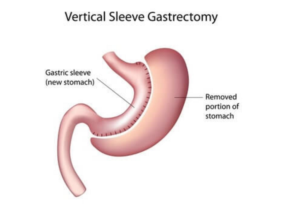 gastric sleeve graphic
