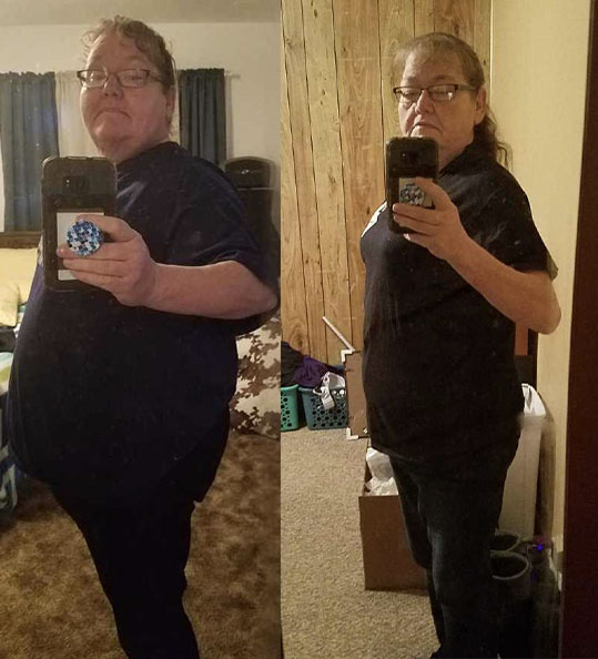 Betty's weight loss transformation