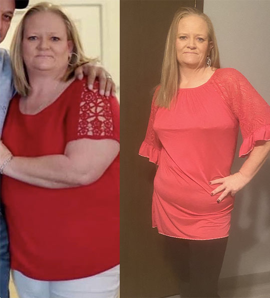 Laquitha's weight loss transformation