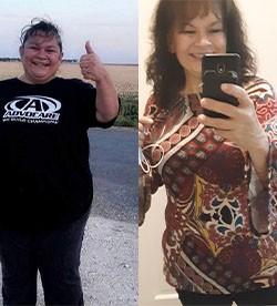 Palmira's weight loss transformation