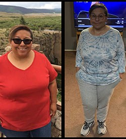 Annette's weight loss transformation