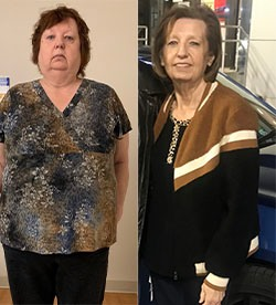 Tamela's weight loss transformation